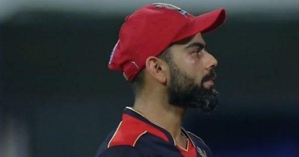 Virat Kohli eye injury Pic